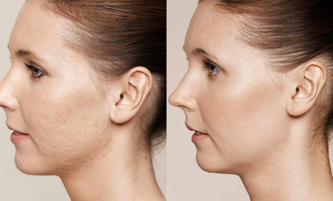 esthetical avant apres cicatrices acne - Esthétical Paris